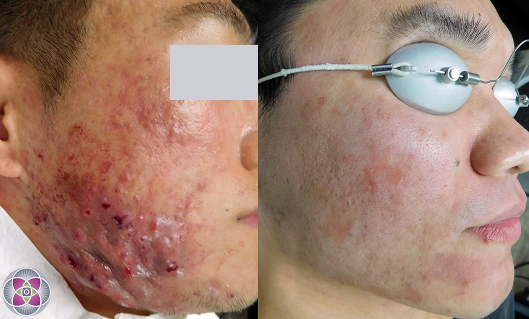 Watch How to Get Rid of Dark Spots and Finally Get Even Skin video