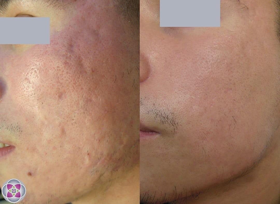 Severe Acne Scars Forehead