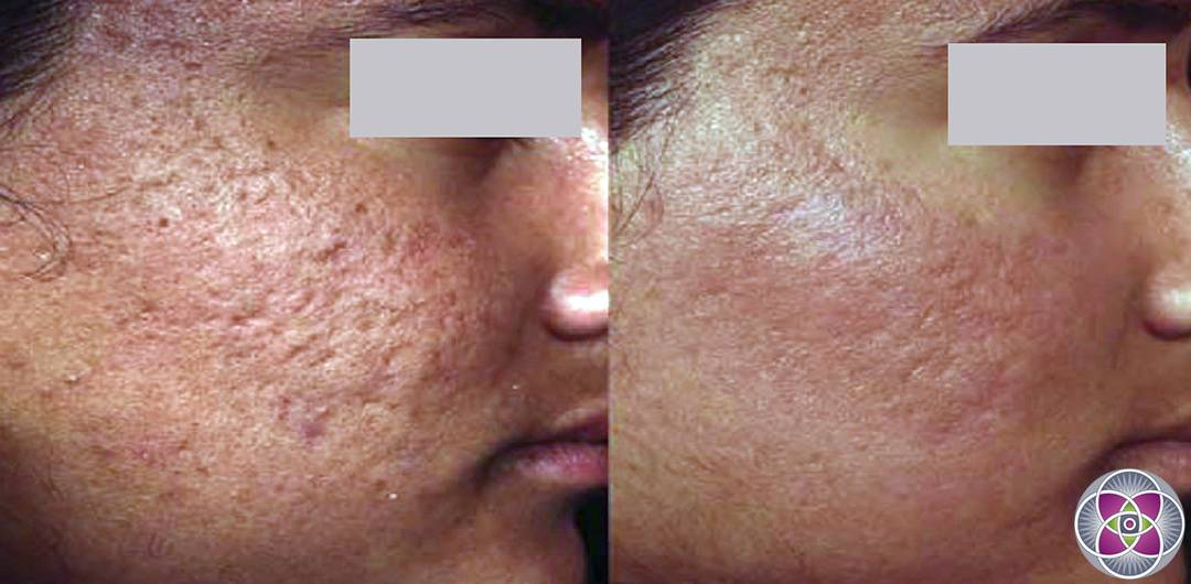 skin scar laser treatment