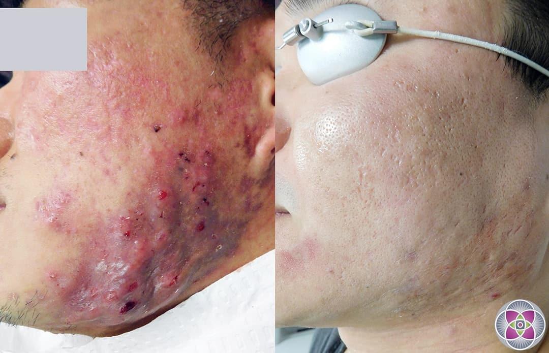 Erythromycin For Acne Scars