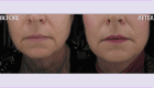 before-after-detail-collagen-1.png
