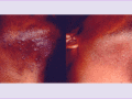 before-after-detail-hair-removal-1.png