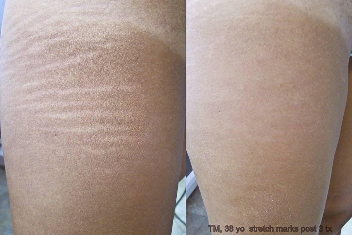 laser scar amp stretch mark removal