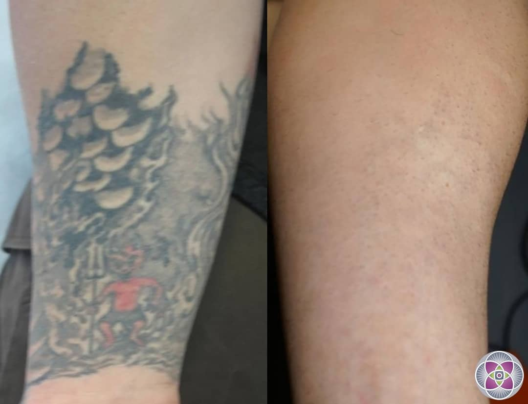 laser removal how a is removed