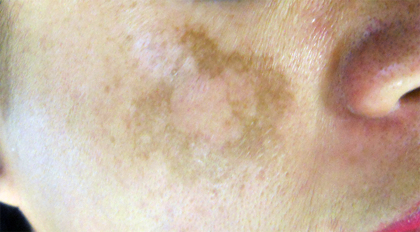 What is Melasma? Causes and Treatment