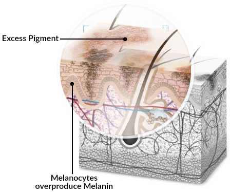 Melasma is caused by the overproduction of melanin