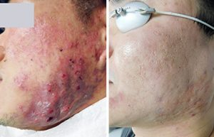 Before and After Laser Treatment for Cystic Acne