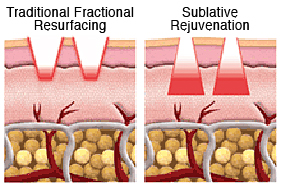 Non-Surgical Facelift Sublative Rejuvenation