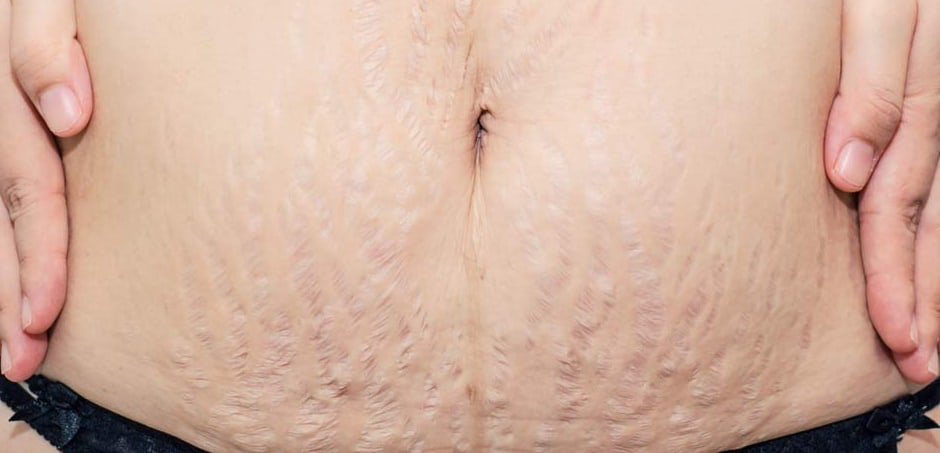 How to Get Rid of Stretch Marks for Summer