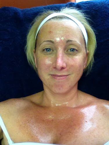 Shelby had her SpectraLift facelift without surgery this week and is blogging about her experience.