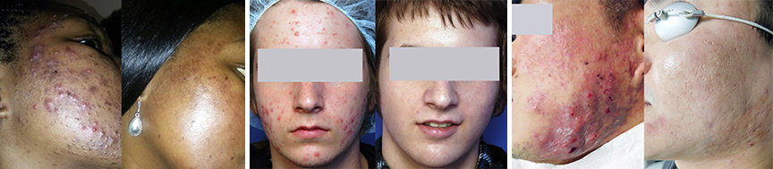 Before and After Laser Acne Treatment - Acne treatments with lasers do NOT have the negative side effects like Accutane