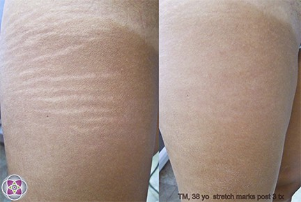 Before and After Laser Treatment to Get Rid of Stretch Marks