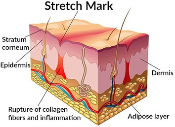 Knowing what is a stretch mark is the first step in knowing how to get rid of it