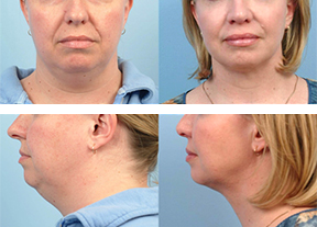 Before and After Neck Tightening