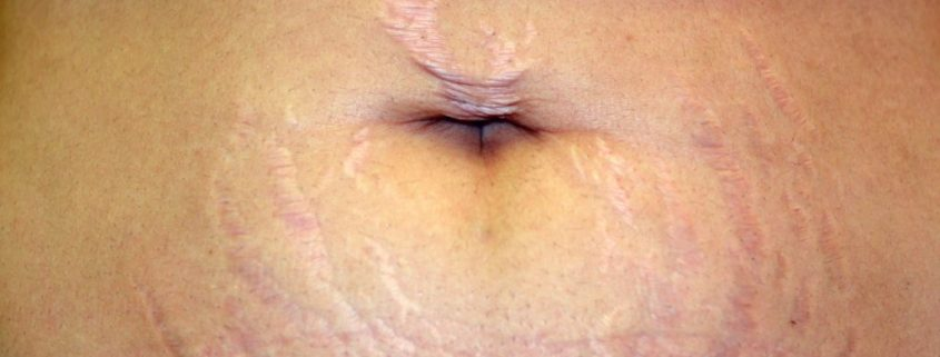 Stretch Marks : Causes, Prevention, Treatment