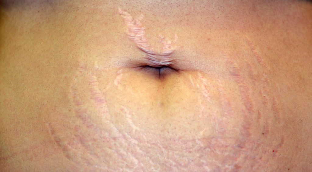 Pregnancy is common of what causes stretch marks