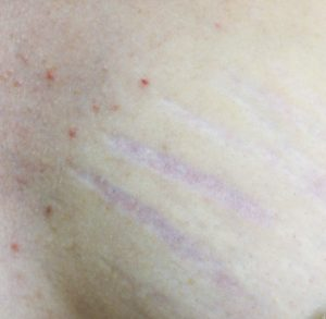 Stretch Mark Removal for Stretch Marks on the Breast