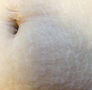 Stretch marks on the stomach can be removed