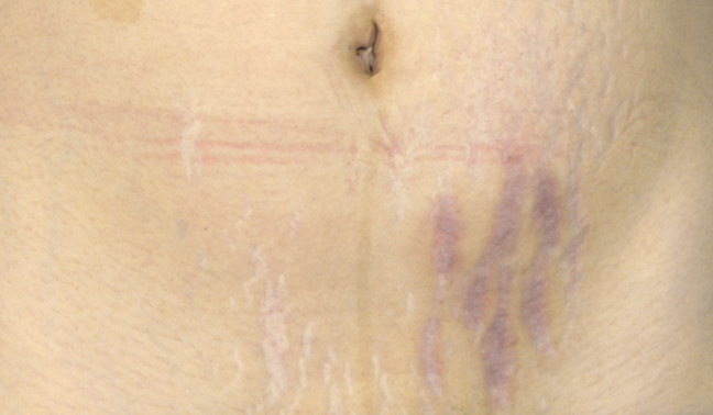 There are several different remedies for stretch marks on the stomach