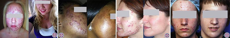 Before and after results from acne treatments that utilize lasers and Photodynamic Therapy