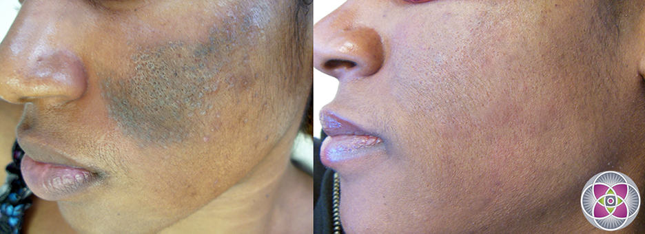 Laser treatment for dark skin hyperpigmentation and melasma is the most challenging of all the skin types