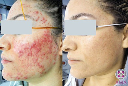 How to get rid of acne? Lasers are the best treatment