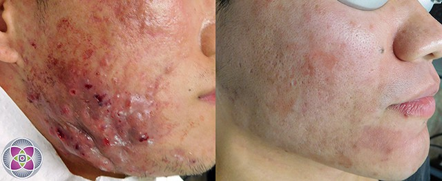 There is hope! Even the most severe cases of cystic acne can be healed.