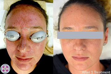 Before and After Laser Treatment for Sun Damage