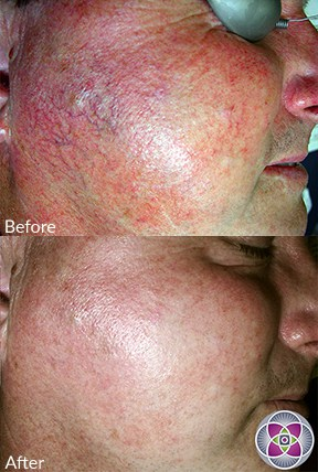 How to treat rosacea? Lasers can eliminate the rosacea symptoms