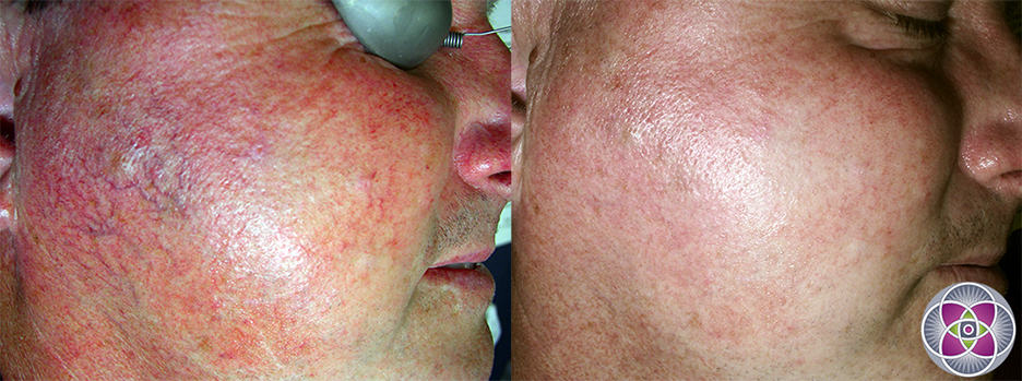 How to get rid of rosacea... Laser treatments are by far the best treatment for the symptoms of rosacea