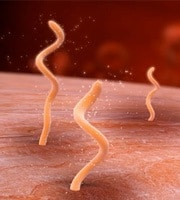 The corkscrew shape of the Borrelia allows it to drill inside our tissues and hide out.