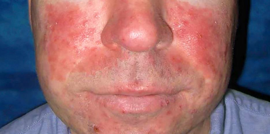 What is that redness on my face? Chances are... It's rosacea.