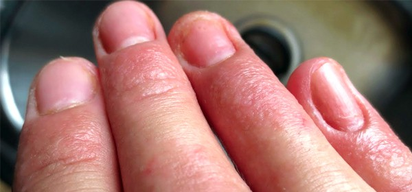 What is dermatitis? Contact dermatitis is one of the 7 most common types of dermatitis.