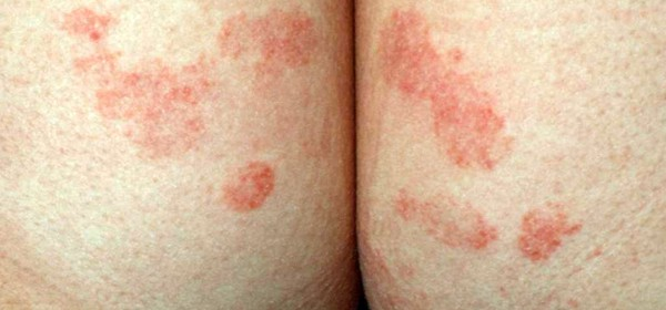 What is dermatitis? Nummular dermatitis is one of the 7 most common types of dermatitis.