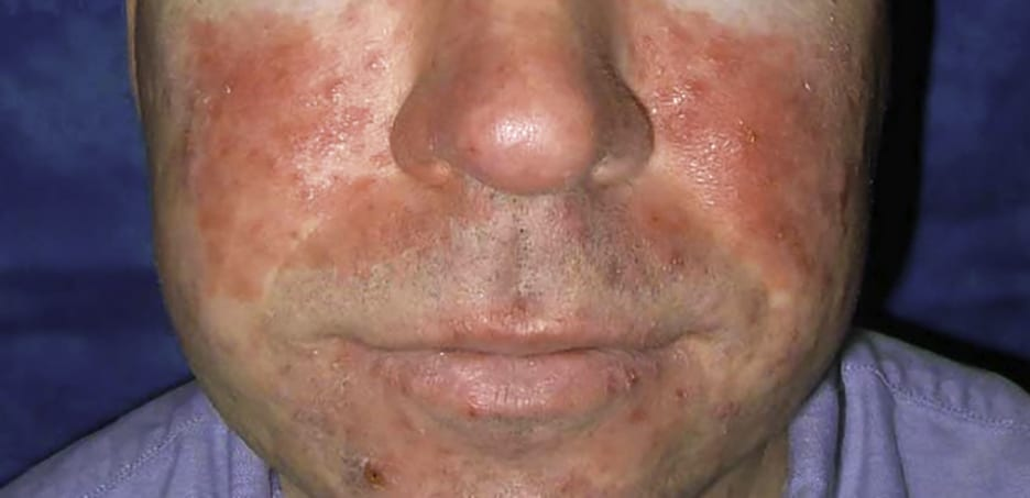The symptoms of rosacea... What is rosacea? What causes rosacea? How to treat rosacea.