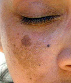 Dark spots on skin caused by Melasma