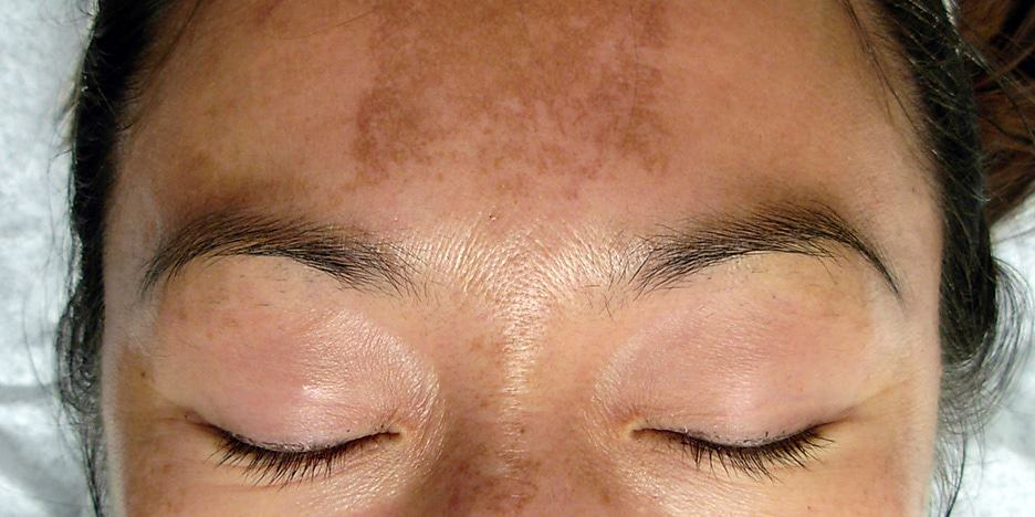 darkening of skin on face