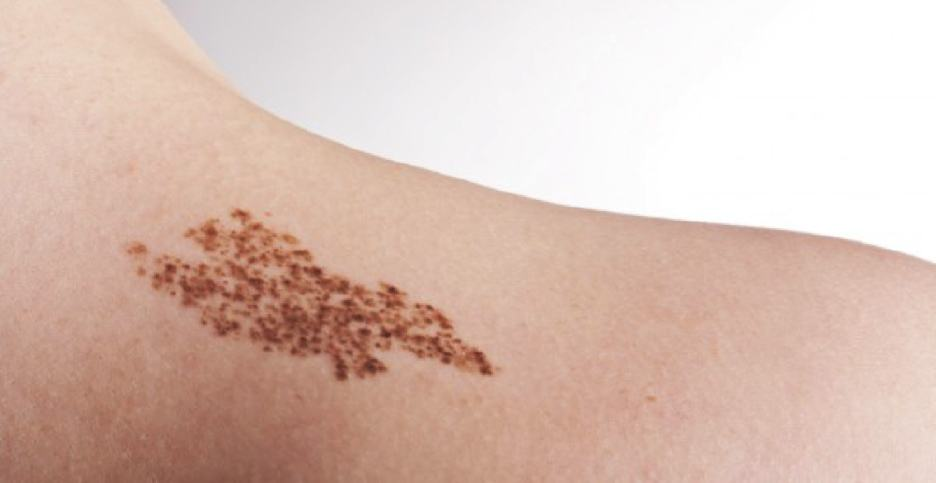 What is a birthmark? There are many different types of birthmarks.