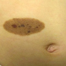 "A ""Melanocytic Nevus"" birthmark"