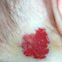 What is a birthmark? Telangiectatic nevus