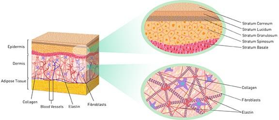Strengthening the skin's collagen matrix is how to tighten skin with laser skin tightening