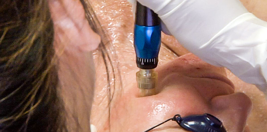 Microneedling rejuvenates your skin's collagen through an acupuncture-like treatment.