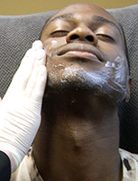 A topical numbing cream is applied prior to the microneedling treatment