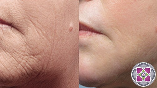The results of microneedling... Before and after microneedling with dermal infusion