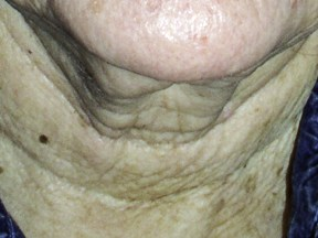 Wrinkles on the neck