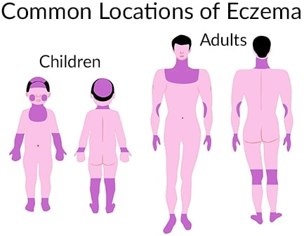 Common Locations of Eczema