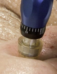 "The ""pen-like"" device used in microneedling"