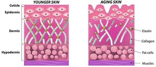 Another reason that jowls form is the breakdown of collagen. Around the age of 40 our collagen matrix begins to weaken and degenerate.
