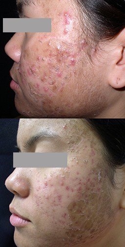Recovery from Photodynamic Therapy acne treatment