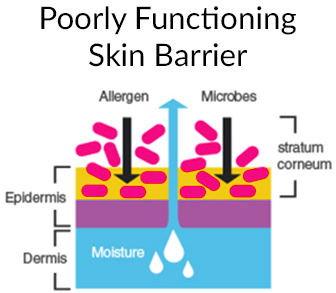 Eczema is associated with a poorly functioning skin barrier